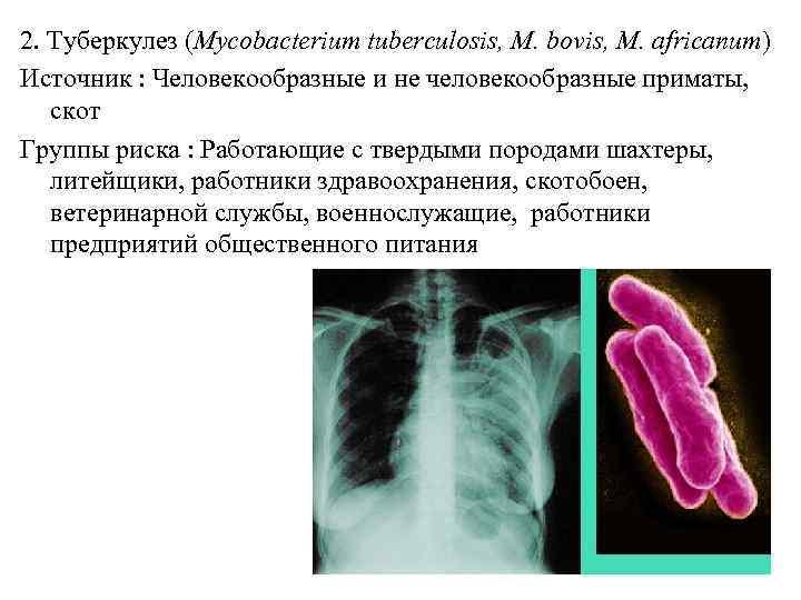 2. Туберкулез (Mycobacterium tuberculosis, M. bovis, M. africanum) Источник : Человекообразные и не человекообразные
