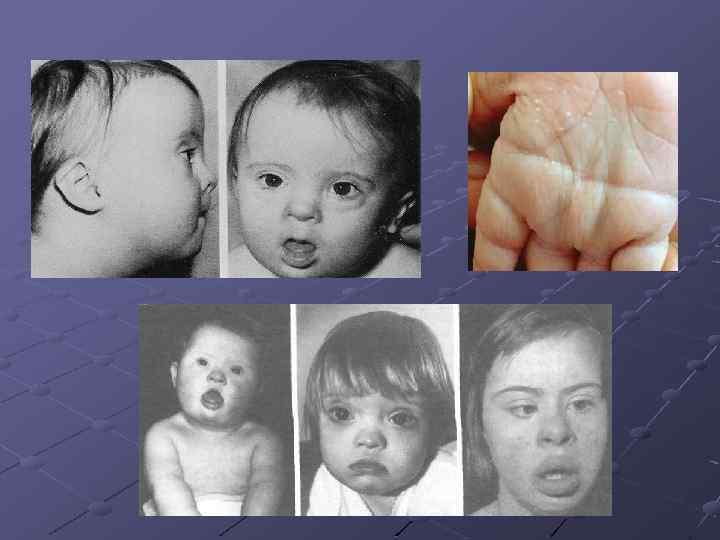 Наследственные заболевания человека картинки