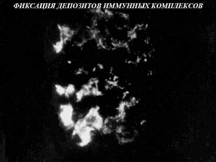 ФИКСАЦИЯ ДЕПОЗИТОВ ИММУННЫХ КОМПЛЕКСОВ