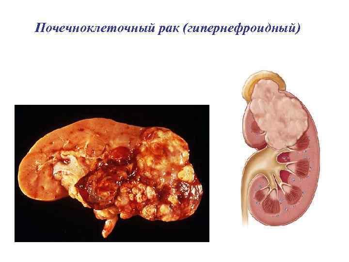 Почечноклеточный рак (гипернефроидный)