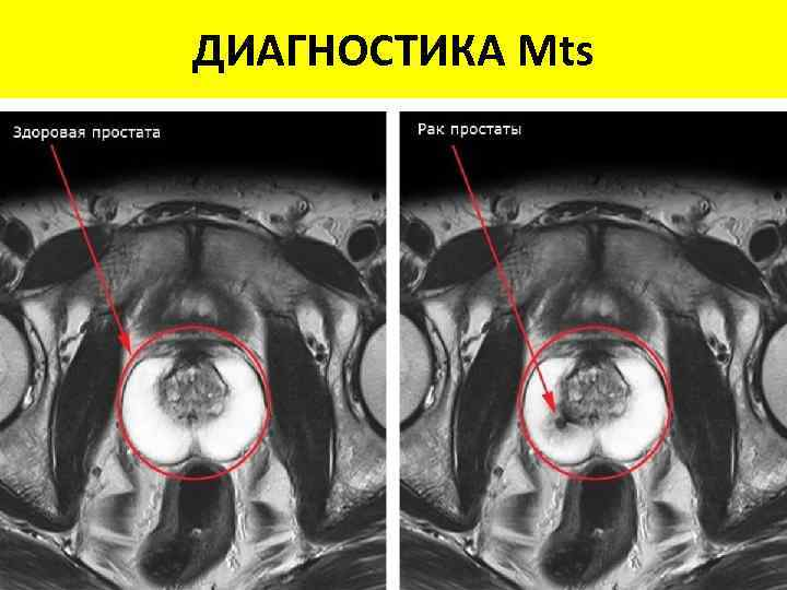 ДИАГНОСТИКА Mts Способ Чувствительн Специфичность, CI визуализации ость, % % Рентген 78 85 95%