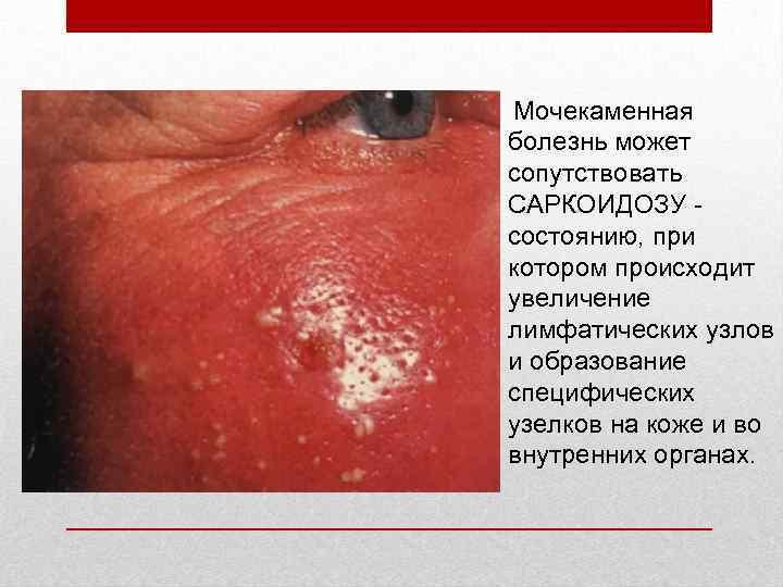 Мочекаменная болезнь может сопутствовать САРКОИДОЗУ - состоянию, при котором происходит увеличение лимфатических узлов