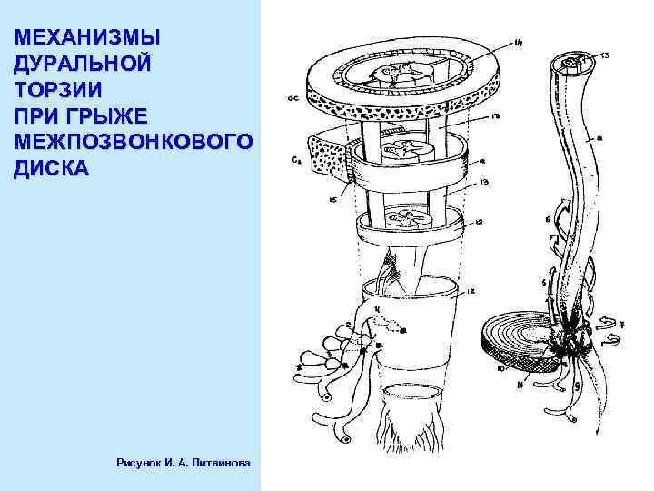 МЕХАНИЗМЫ ДУРАЛЬНОЙ ТОРЗИИ ПРИ ГРЫЖЕ МЕЖПОЗВОНКОВОГО ДИСКА Рисунок И. А. Литвинова