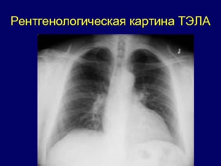 Рентгенологическая картина ТЭЛА