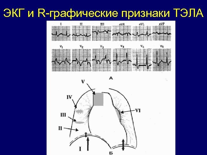 ЭКГ и R-графические признаки ТЭЛА