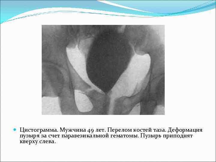 Цистограмма. Мужчина 49 лет. Перелом костей таза. Деформация пузыря за счет паравезикальной гематомы.