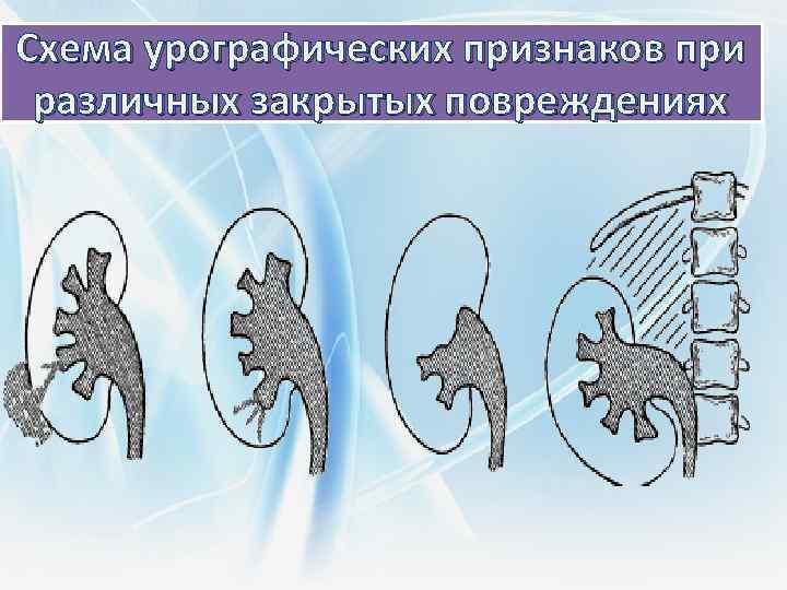 Схема урографических признаков при различных закрытых повреждениях
