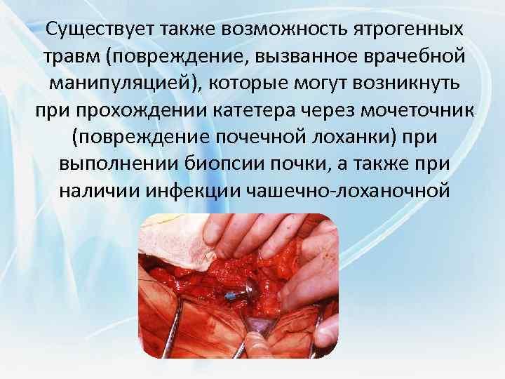 Существует также возможность ятрогенных травм (повреждение, вызванное врачебной манипуляцией), которые могут возникнуть при прохождении