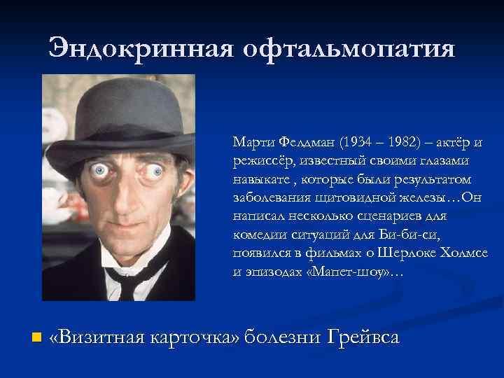 Эндокринная офтальмопатия Марти Фелдман (1934 – 1982) – актёр и режиссёр, известный своими глазами