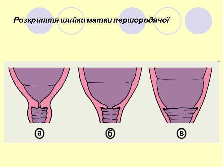 Розкриття шийки матки першородячої