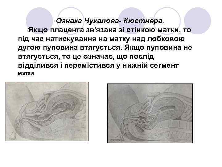 Ознака Чукалова- Кюстнера. Якщо плацента зв'язана зі стінкою матки, то під час натискування на