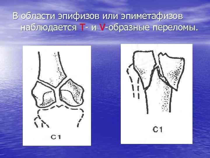 В области эпифизов или эпиметафизов наблюдается Т- и V-образные переломы.