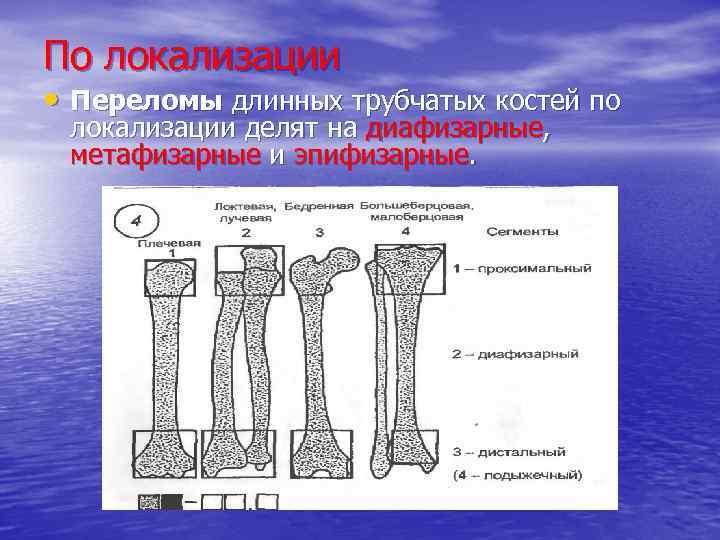 По локализации • Переломы длинных трубчатых костей по локализации делят на диафизарные, метафизарные и