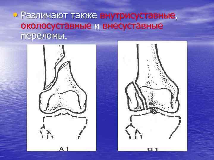 • Различают также внутрисуставные, околосуставные и внесуставные переломы.