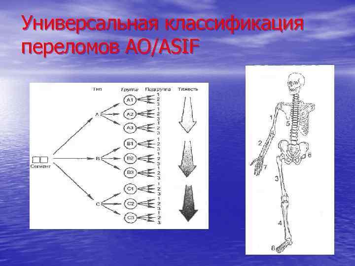 Универсальная классификация переломов АО/ASIF