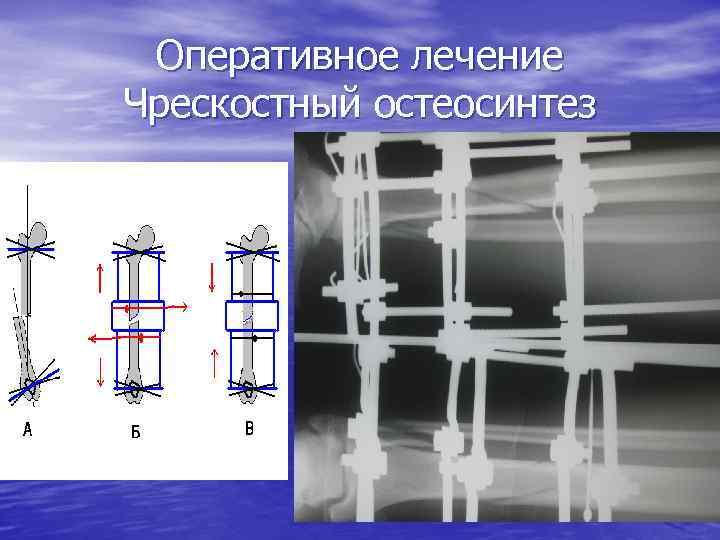 Оперативное лечение Чрескостный остеосинтез