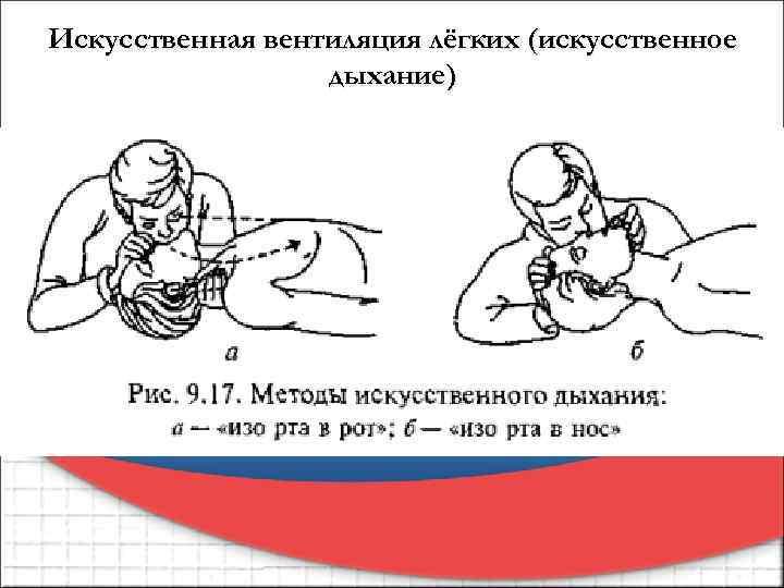Искусственная вентиляция лёгких (искусственное дыхание)