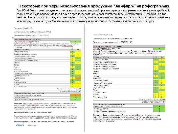 """Некоторые примеры использования продукции """"Апифарм"""" на рофограммах При РОФЭС-тестировании данного человека обнаружен высокий уровень"""