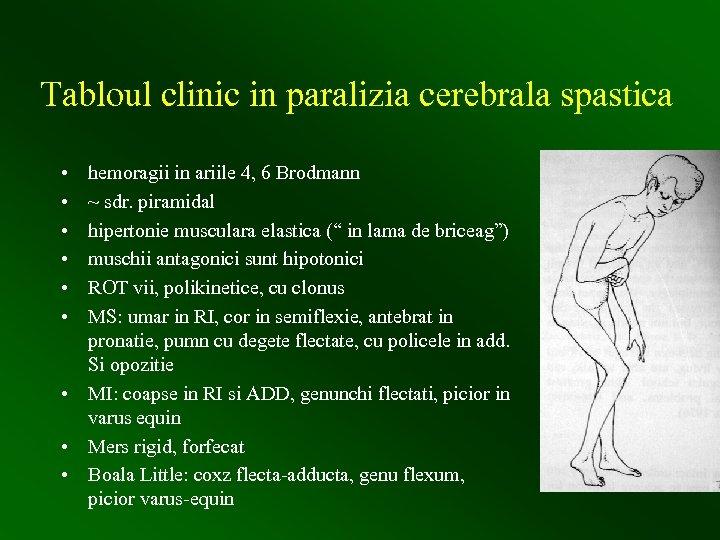 Tabloul clinic in paralizia cerebrala spastica • • • hemoragii in ariile 4, 6