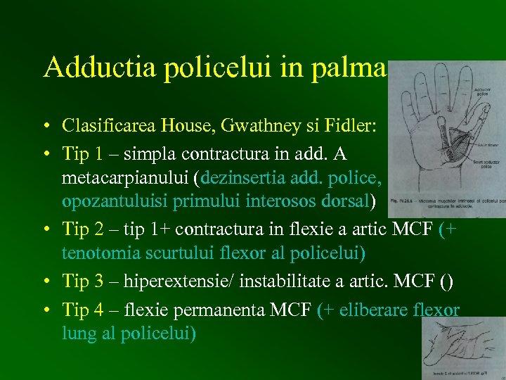 Adductia policelui in palma • Clasificarea House, Gwathney si Fidler: • Tip 1 –