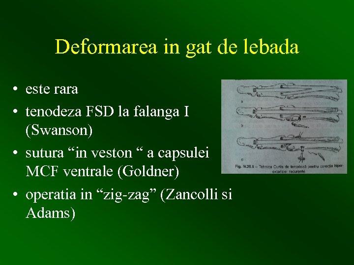 Deformarea in gat de lebada • este rara • tenodeza FSD la falanga I