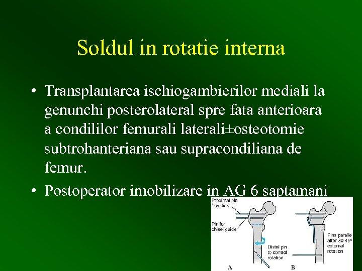 Soldul in rotatie interna • Transplantarea ischiogambierilor mediali la genunchi posterolateral spre fata anterioara