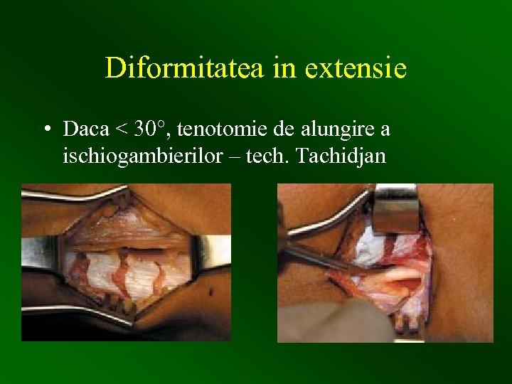 Diformitatea in extensie • Daca < 30°, tenotomie de alungire a ischiogambierilor – tech.