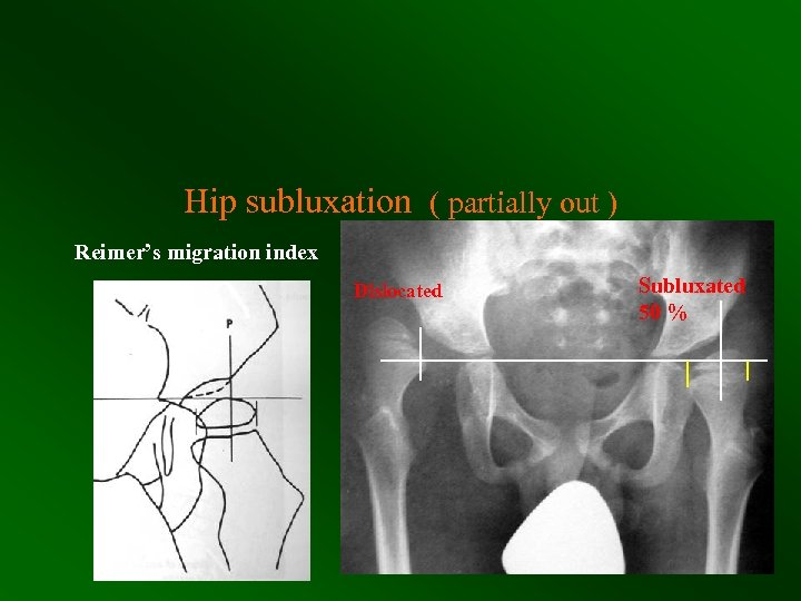 Hip subluxation ( partially out ) Reimer's migration index Dislocated Subluxated 50 %