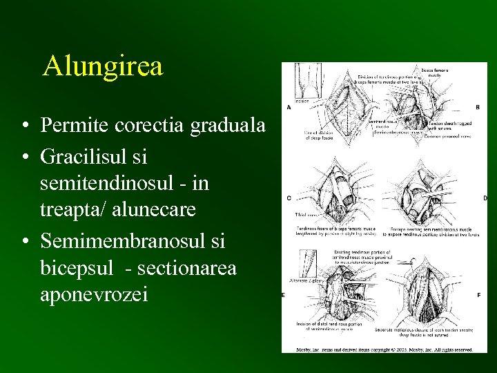 Alungirea • Permite corectia graduala • Gracilisul si semitendinosul - in treapta/ alunecare •