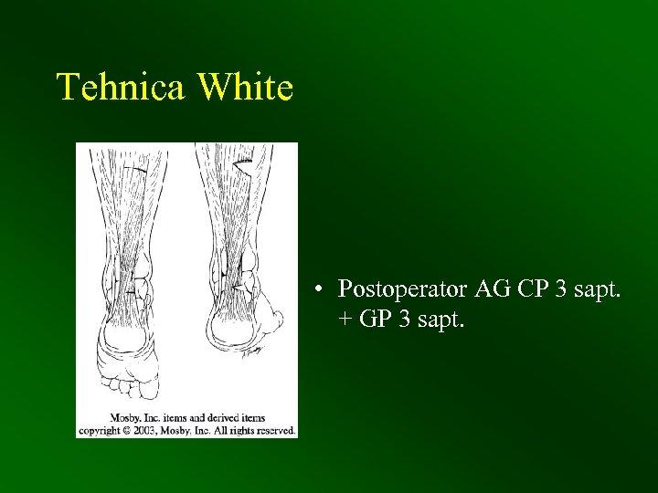 Tehnica White • Postoperator AG CP 3 sapt. + GP 3 sapt.