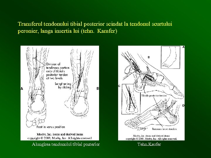 Transferul tendonului tibial posterior scindat la tendonul scurtului peronier, langa insertia lui (tehn. Kamfer)