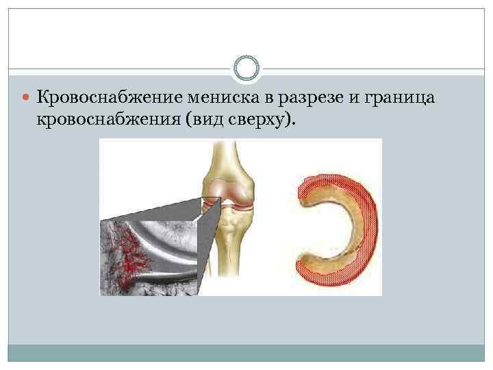 Кровоснабжение мениска в разрезе и граница кровоснабжения (вид сверху).