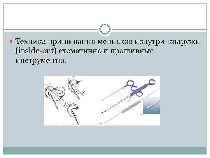 Техника пришивания менисков изнутри-кнаружи (inside-out) схематично и прошивные инструменты.