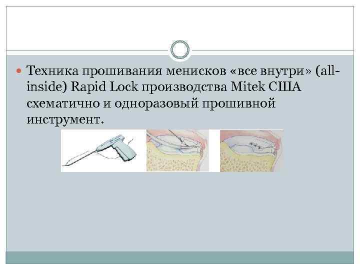 Техника прошивания менисков «все внутри» (all- inside) Rapid Lock производства Mitek США схематично
