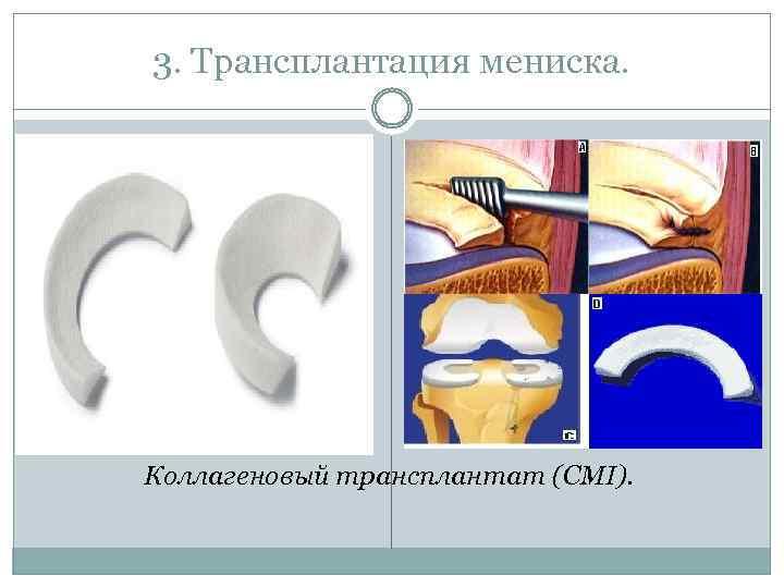 3. Трансплантация мениска. Коллагеновый трансплантат (CMI).