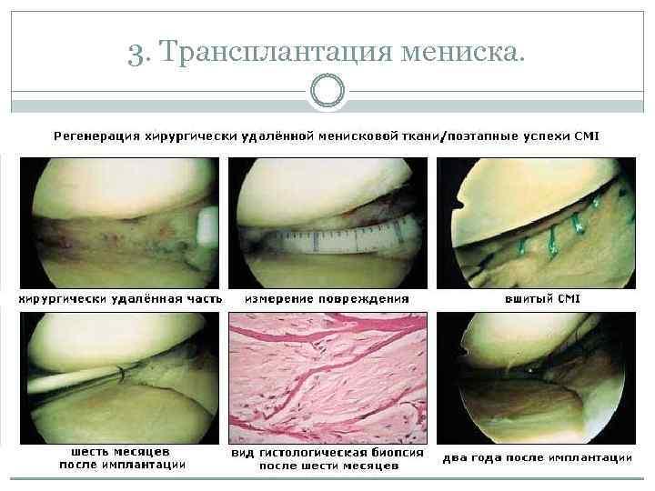 3. Трансплантация мениска.