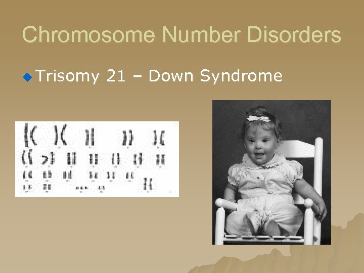 Chromosome Number Disorders u Trisomy 21 – Down Syndrome