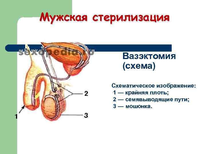Мужская стерилизация Вазэктомия (схема) Схематическое изображение: 1 — крайняя плоть; 2 — семявыводящие пути;