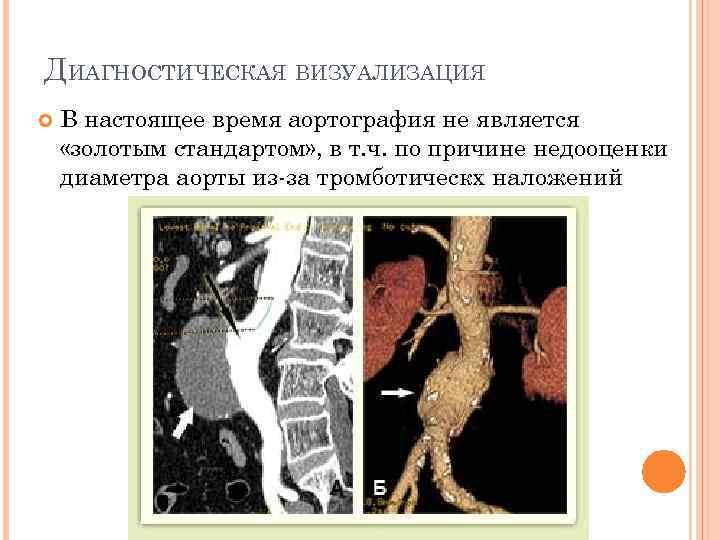 ДИАГНОСТИЧЕСКАЯ ВИЗУАЛИЗАЦИЯ В настоящее время аортография не является «золотым стандартом» , в т. ч.