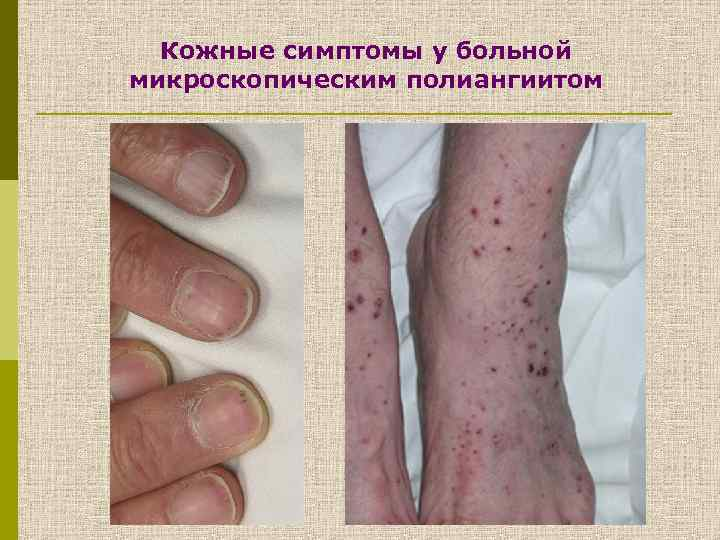 Кожные симптомы у больной микроскопическим полиангиитом