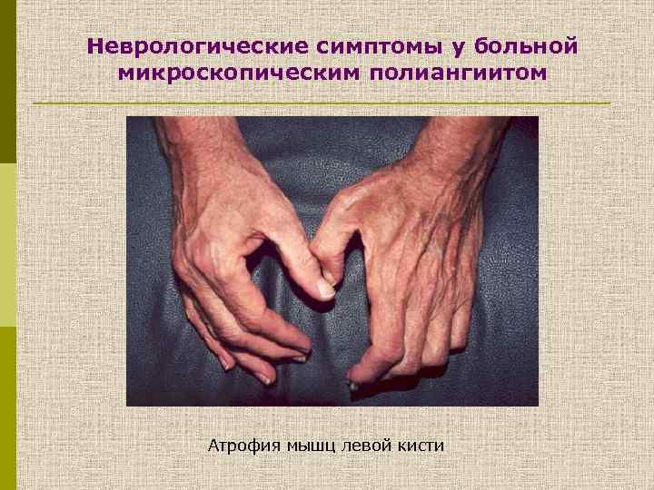 Неврологические симптомы у больной микроскопическим полиангиитом Атрофия мышц левой кисти