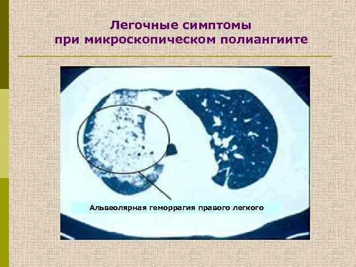 Легочные симптомы при микроскопическом полиангиите Атрофия мышц правой кисти Альвеолярная геморрагия правого легкого