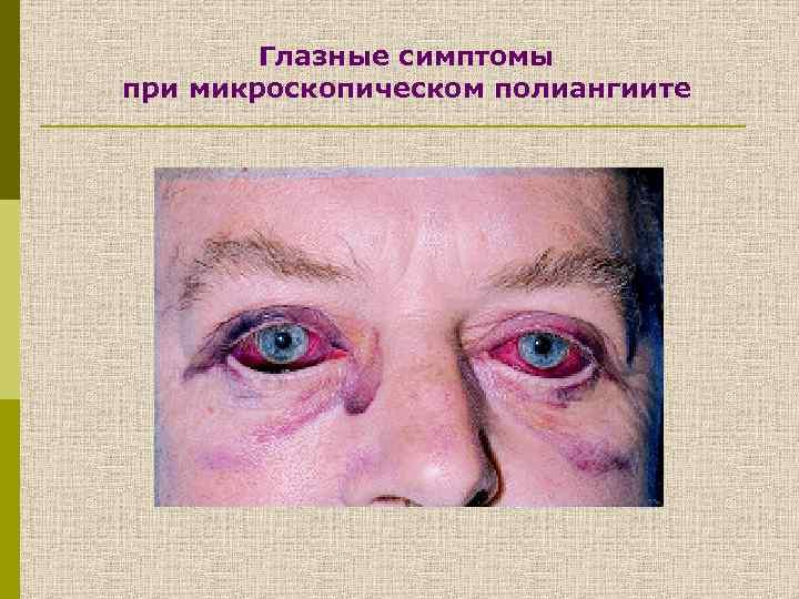 Глазные симптомы при микроскопическом полиангиите