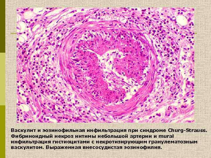Васкулит и эозинофильная инфильтрация при синдроме Churg-Strauss. Фибриноидный некроз интимы небольшой артерии и mural