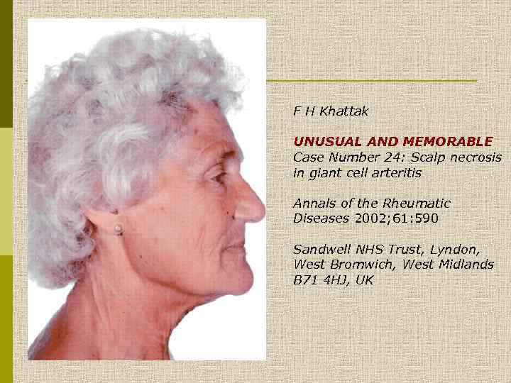 F H Khattak UNUSUAL AND MEMORABLE Case Number 24: Scalp necrosis in giant cell