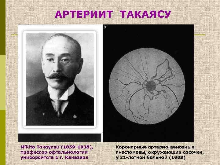 АРТЕРИИТ ТАКАЯСУ Mikito Takayasu (1859 -1938), профессор офтальмологии университета в г. Каназава Коронарные артерио-венозные