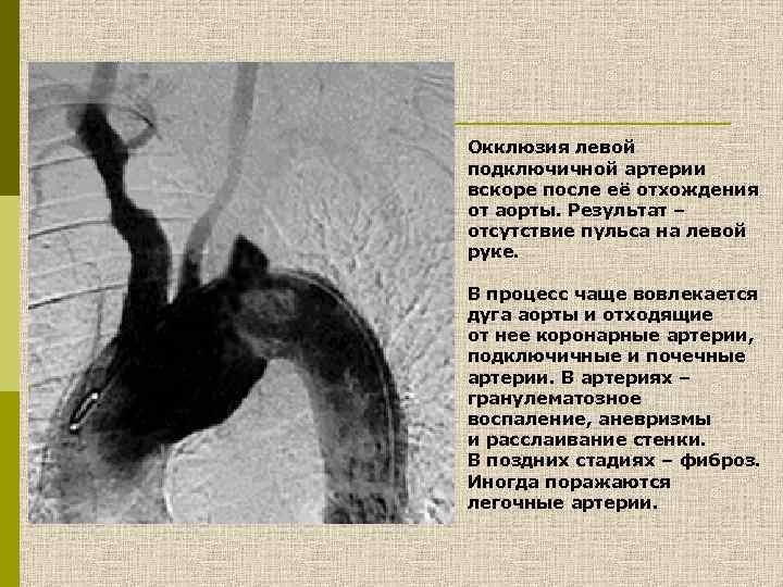 Окклюзия левой подключичной артерии вскоре после её отхождения от аорты. Результат – отсутствие пульса