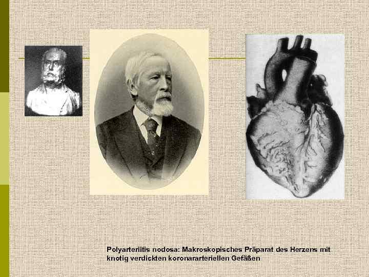 Polyarteriitis nodosa: Makroskopisches Präparat des Herzens mit knotig verdickten koronararteriellen Gefäßen