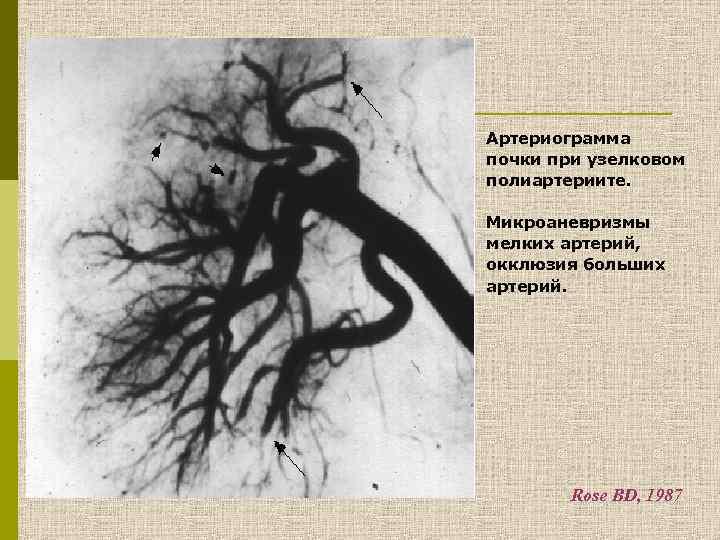 Артериограмма почки при узелковом полиартериите. Микроаневризмы мелких артерий, окклюзия больших артерий. Rose BD, 1987
