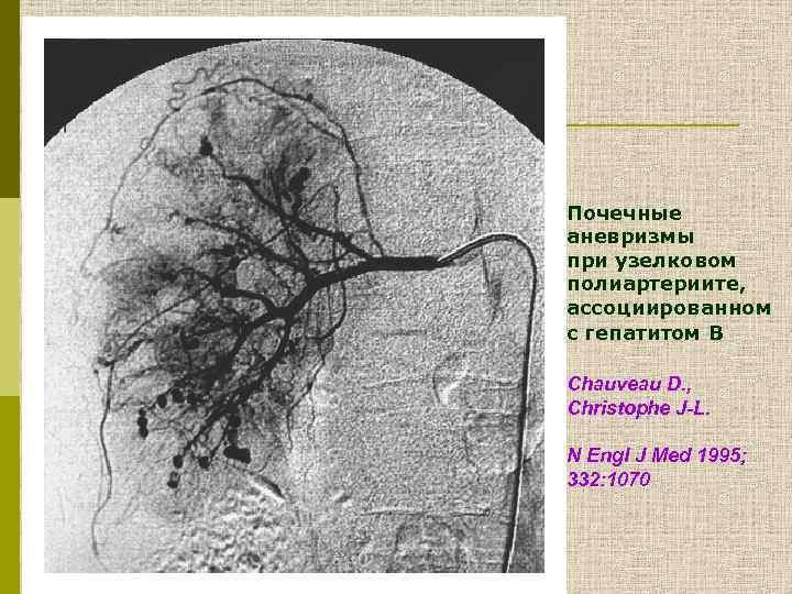 Почечные аневризмы при узелковом полиартериите, ассоциированном с гепатитом В Chauveau D. , Christophe J-L.